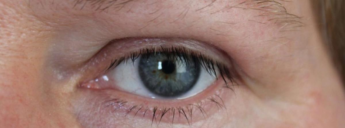 Augenlidklebeband Tipps und Vergleich
