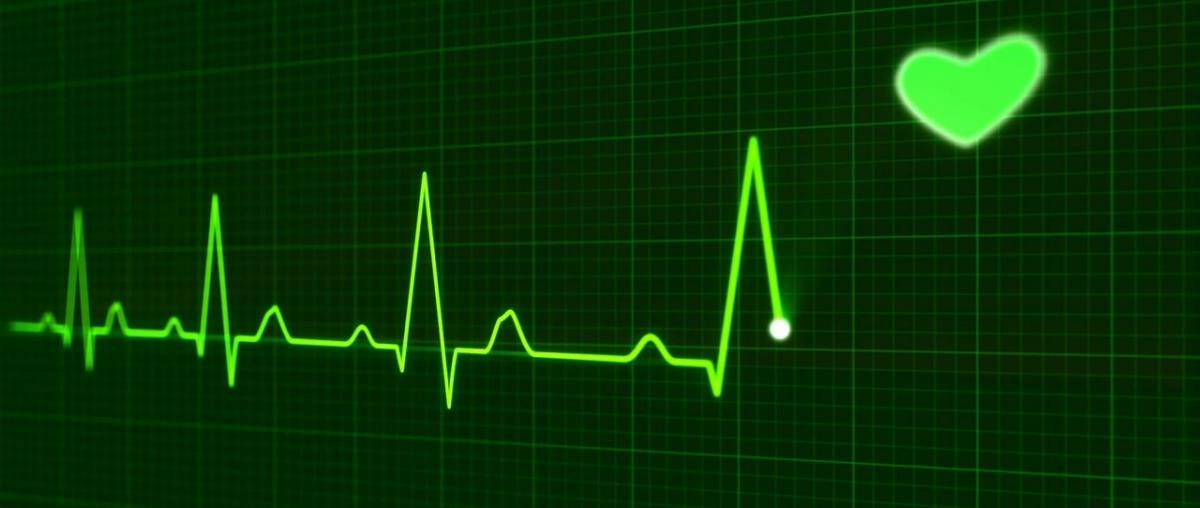 EKG Ratgeber